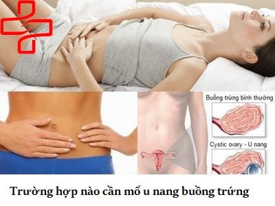 truong-hop-nao-can-mo-u -nang-buong-trung