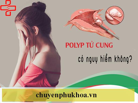 PolypPolyp-co-tu-cung-co-nguy-hiem-khong