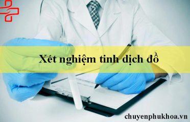 xet-nghiem-tinh-dich-do
